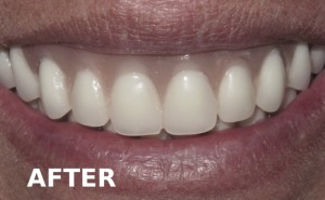 After All On 4 Dental Implant