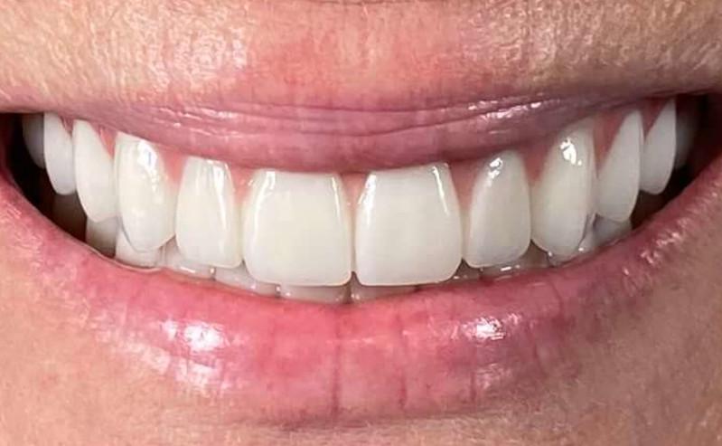 After All On 4 in Mario Garita Dental Implants Costa Rica