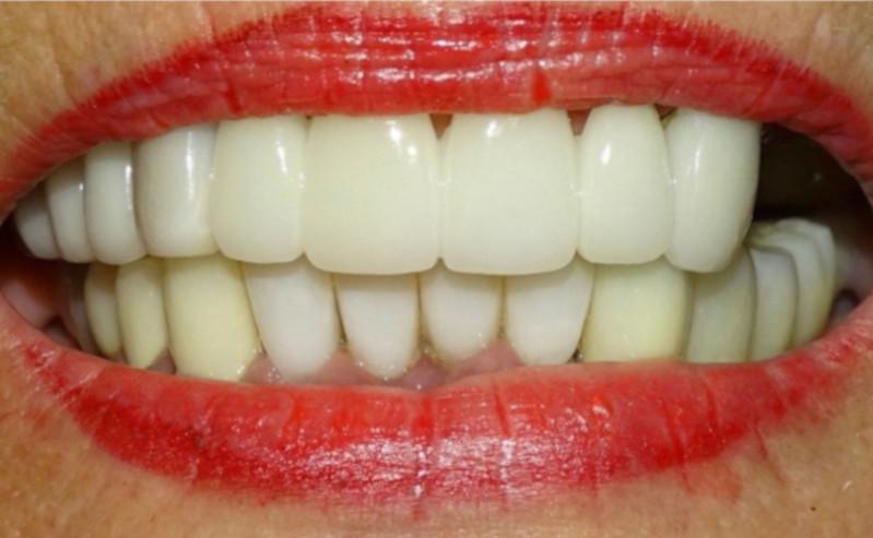 Before All On 4 in Mario Garita Dental Implants Costa Rica