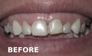 Before All On 4 Dental Implant