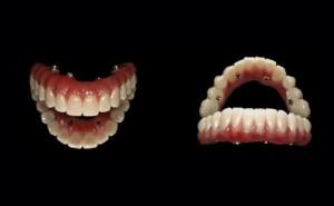 Gran plano de un implante dental All On 4