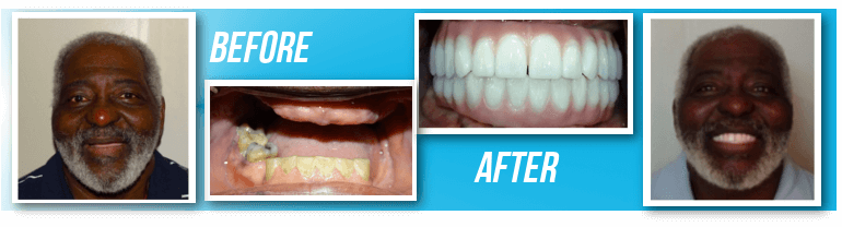 John McKnight Before and after with Dr Mario garita Dental Implants in Costa Rica