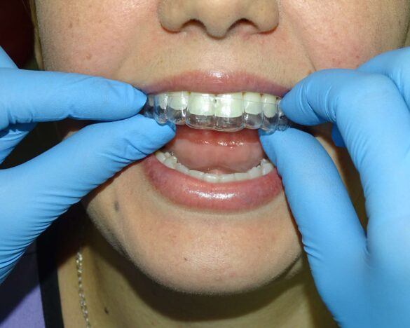 real patient of clear aligners in Mario Garita Dental Implants Costa Rica