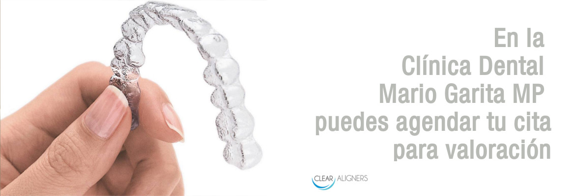 clear-aligners-appointment-es