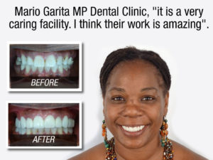 Crystal Allen about Mario Garita MP Dental implant prices testimonial - before and after