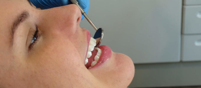 The Effect of Bisphosphonates on the Integration of Implants