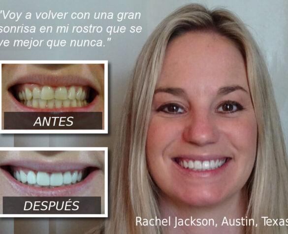 Carillas dentales: se ve mejor que nunca.