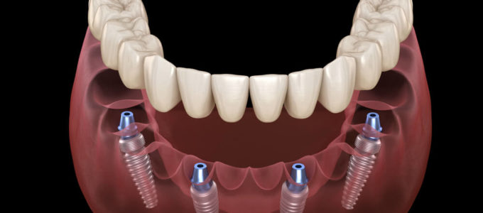 Peri-implantitis: a real threat to your implant investment