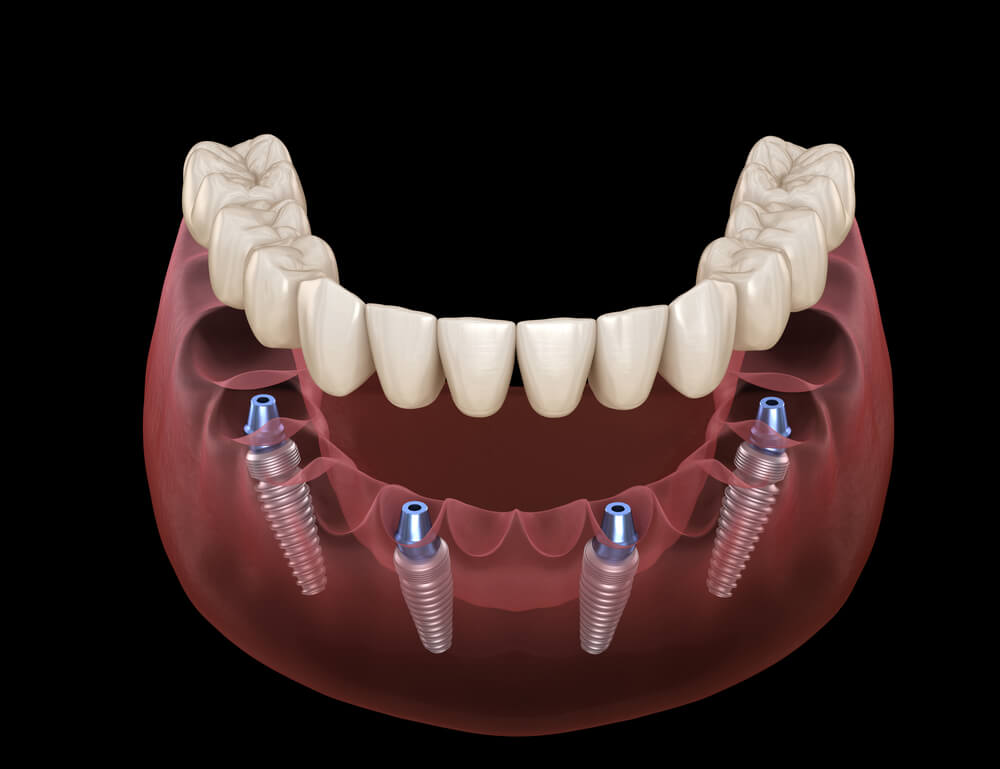 Peri-implantitis is a real threat to your dental implant investment