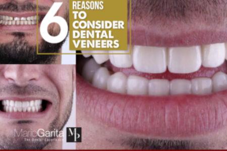 Dental tourism veneers