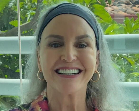 Mrs Dawn Rice, from USA, smile after her dental implants treatment in Costa Rica.