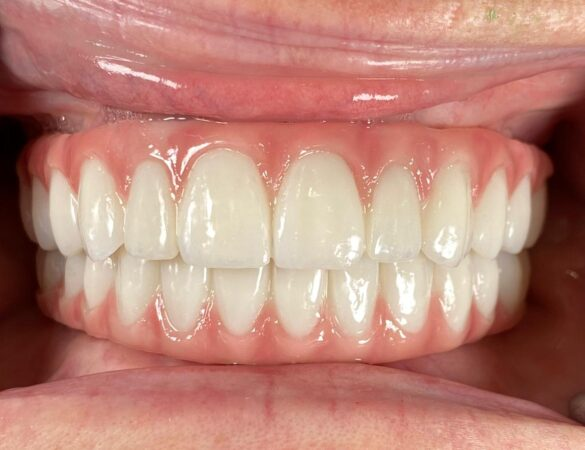 All On 4 10% in Dental Implants Costa Rica